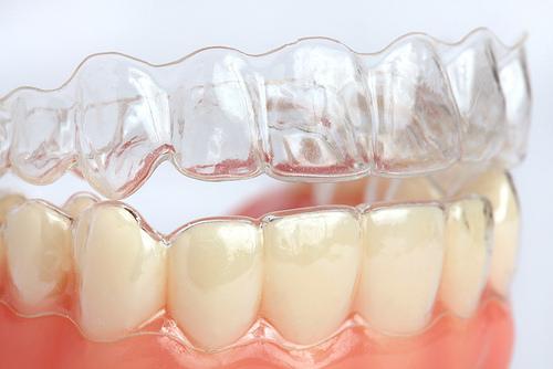 niềng răng vô hình 7