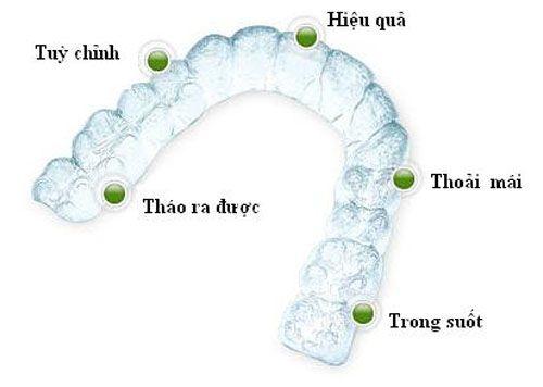 niềng răng không mắc cài invisalign 3