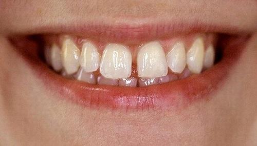 khi nào nên niềng răng 4