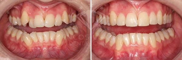 phương pháp niềng răng mắc cài mặt trong 4