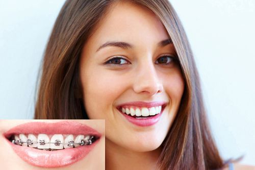 lợi ích của việc niềng răng
