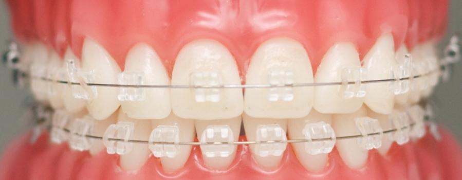 Niềng răng mắc cài sứ thẩm mỹ 3