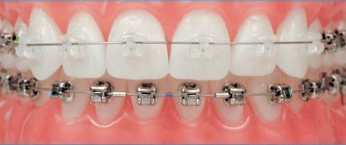 các loại niềng răng mắc cài