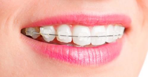 các loại mắc cài niềng răng 2