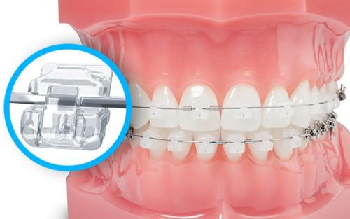 các loại mắc cài niềng răng 4