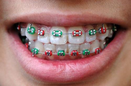 niềng răng mắc cài kim loại 2