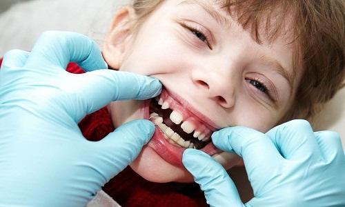 Niềng răng cho trẻ em 2