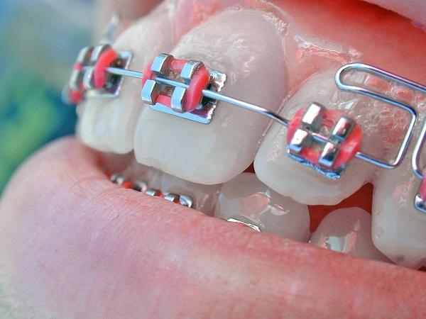 Niềng răng có hại cho sức khỏe không 2