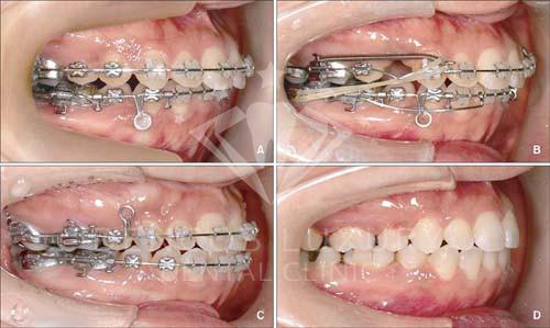 niềng răng như thế nào 8