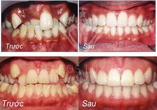 phương pháp niềng răng mắc cài mặt trong 3