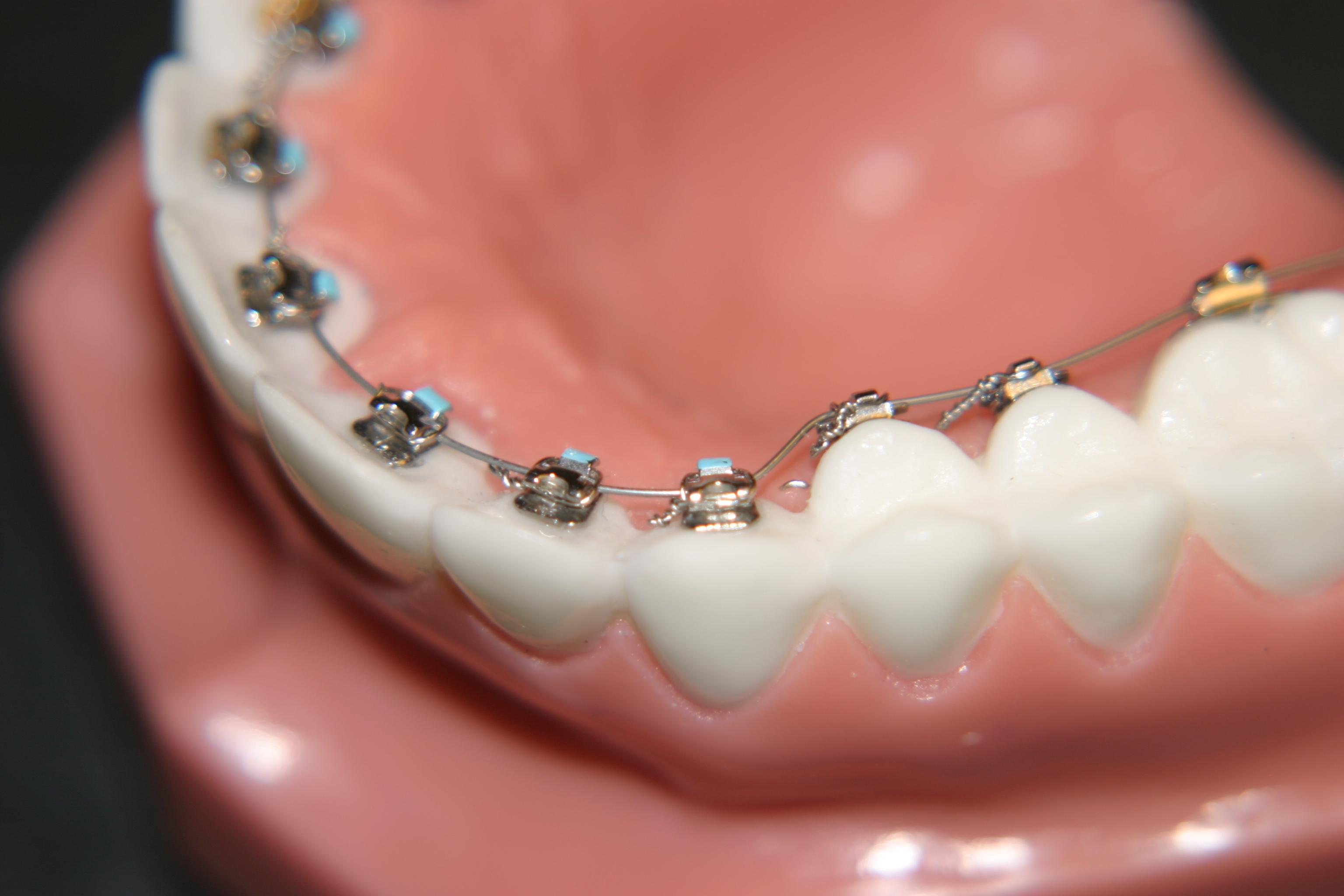 các loại niềng răng mắc cài 3