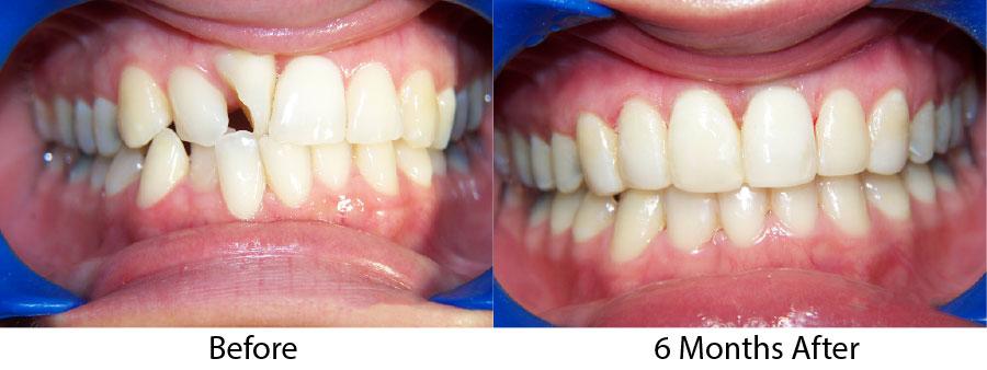 quá trình niềng răng như thế nào 6