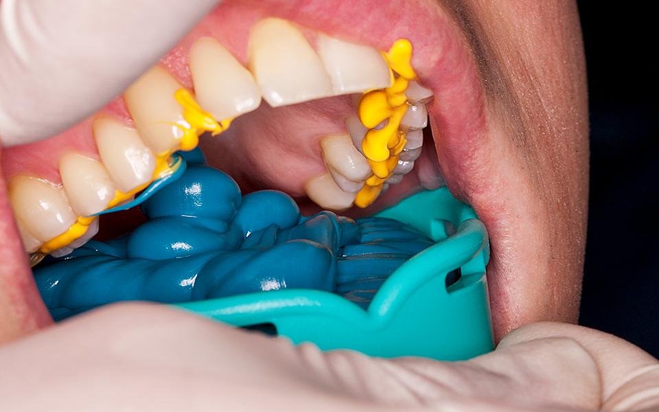 quá trình niềng răng như thế nào 1