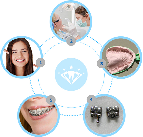 quy trình niềng răng móm