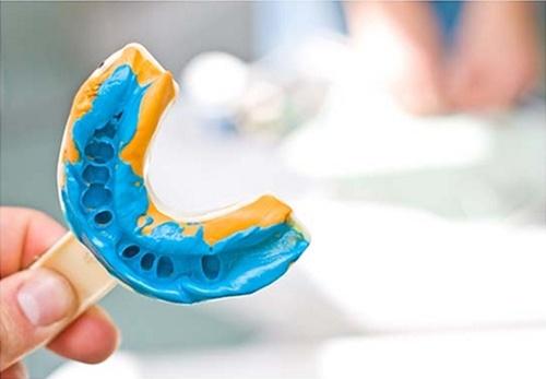 quy trình niềng răng móm 3