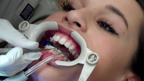 quy trình niềng răng móm 4