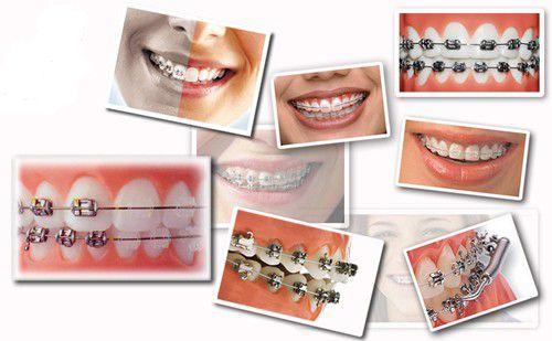 niềng răng uy tín hà nội 11