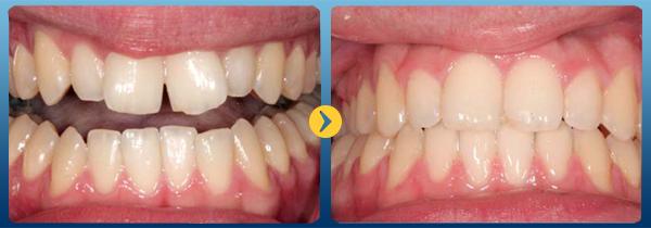 nẹp răng 6