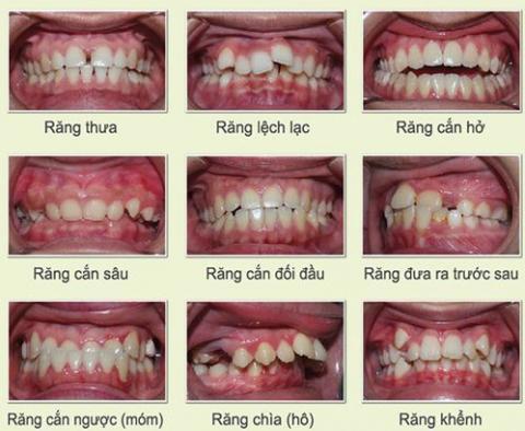 nẹp răng thẩm mỹ