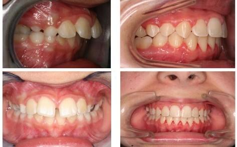 nẹp răng 4