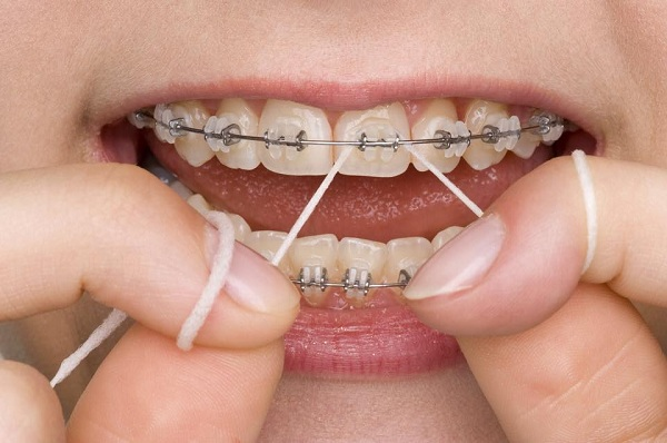 niềng răng đẹp cỡ nào