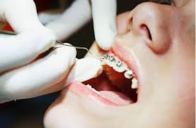 niềng răng sứ thẩm mỹ 4