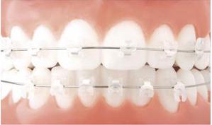 niềng răng sứ thẩm mỹ 2