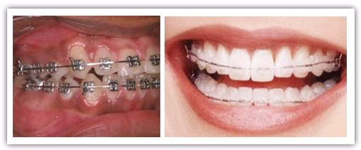 niềng răng sứ thẩm mỹ
