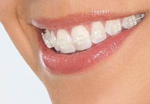niềng răng sứ thẩm mỹ 3