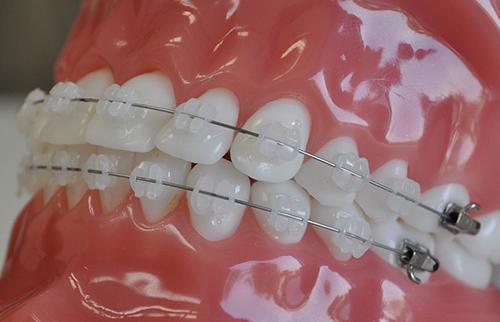 niềng răng sứ thẩm mỹ 5