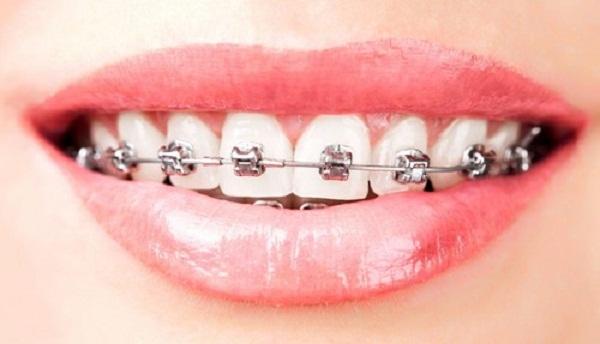 Phương pháp niềng răng thẩm mỹ