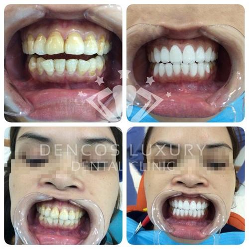 nên niềng răng hay bọc sứ 4