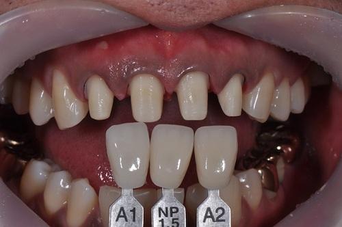 nên niềng răng hay bọc sứ