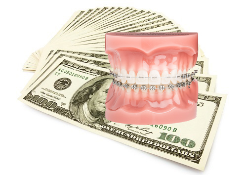 chi phí 1 lần niềng răng