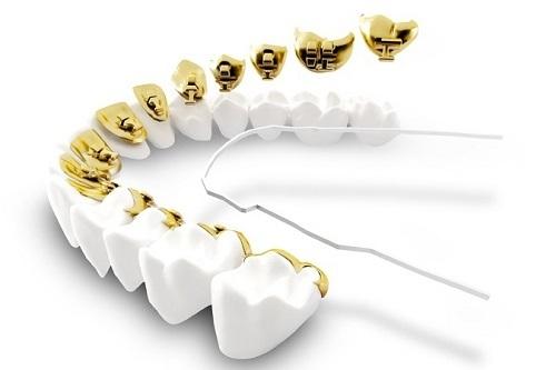 kinh nghiệm niềng răng 4
