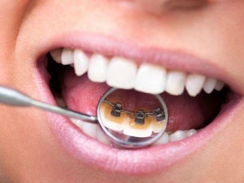 kinh nghiệm niềng răng 7