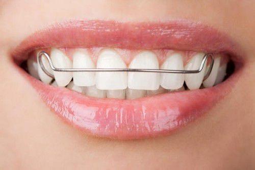 kinh nghiệm niềng răng 8