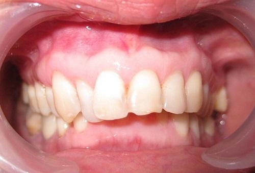 răng hô có xấu không