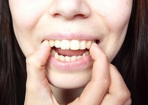 răng hô có xấu không 2