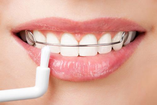 hàm duy trì sau khi niềng răng 3