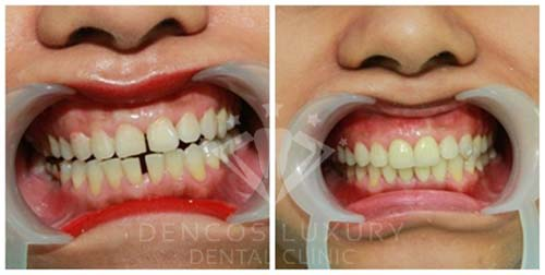 kinh nghiệm niềng răng thưa 4