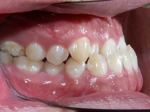 niềng răng móm 2