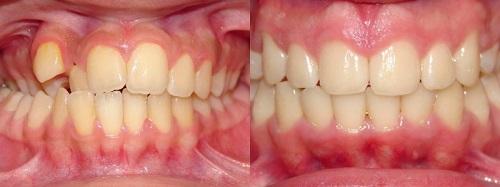 niềng răng móm 4