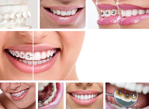 niềng răng móm 5