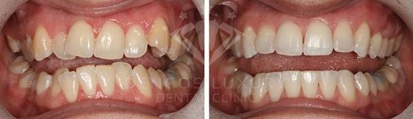 kết quả niềng răng 2