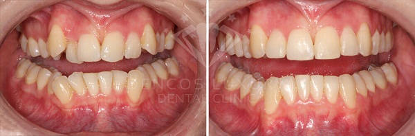 kết quả niềng răng 3