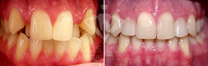 kết quả niềng răng 4