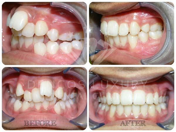 kết quả niềng răng 7
