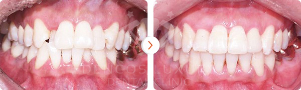 kết quả niềng răng 8