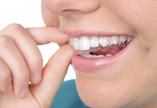 niềng răng 8